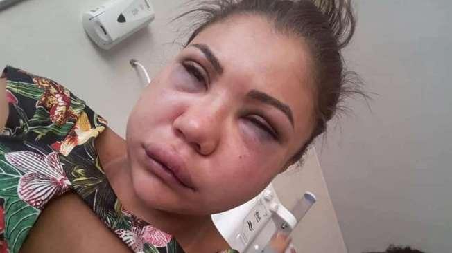 Laiane foi espancada pelo namorado em Valparaíso de Goiás