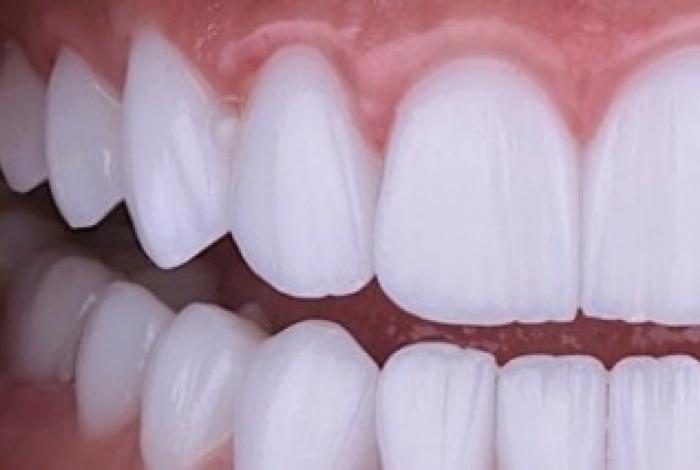 Rogério Penna é especializado em reabilitação oral