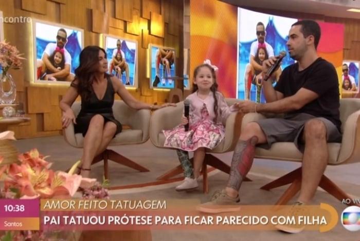 Pai faz tatuagem em forma de prótese para homenagear a filha