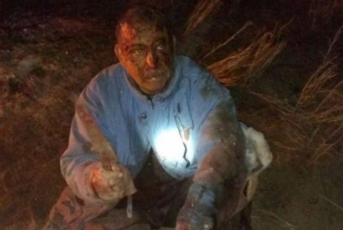 Homem luta contra onça-parda para salvar cachorro