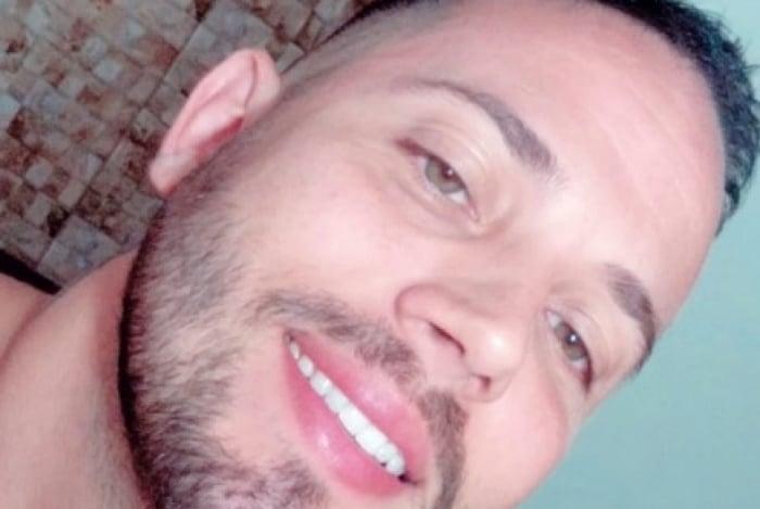 João Almeida revela segredo dos seus dentes brancos