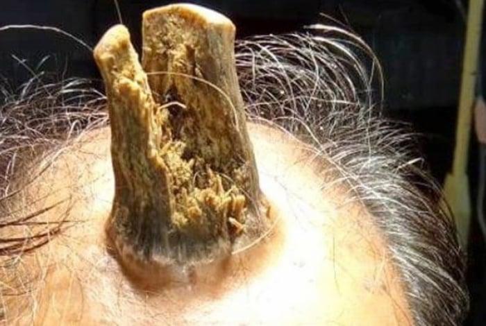 Homem faz cirurgia para retirar chifre