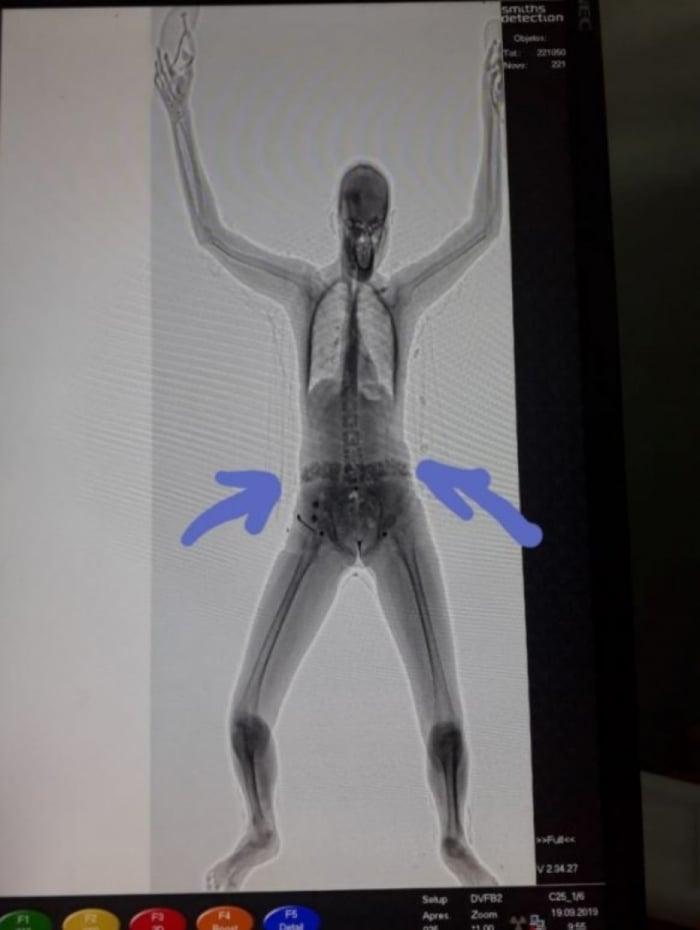 Imagem do scanner corporal