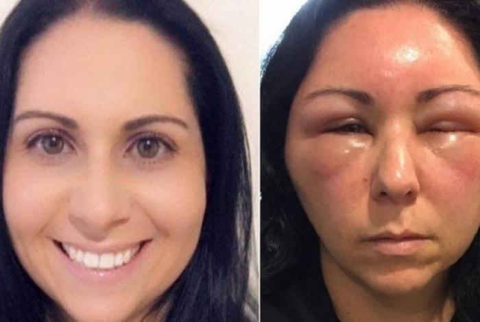 Mulher na Austrália tem reação intensa após pintar o cabelo