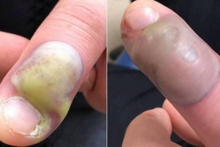 Paciente teve que ser operado às pressas por conta do vício de roer as unhas