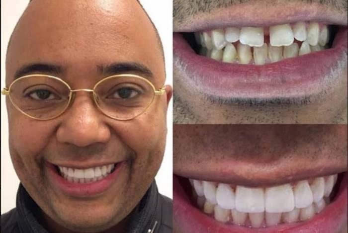 Dudu Nobre entra na onda dos dentes brancos