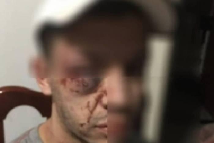 Jovem agredido já estava imobilizado quando foi espancado por policiais