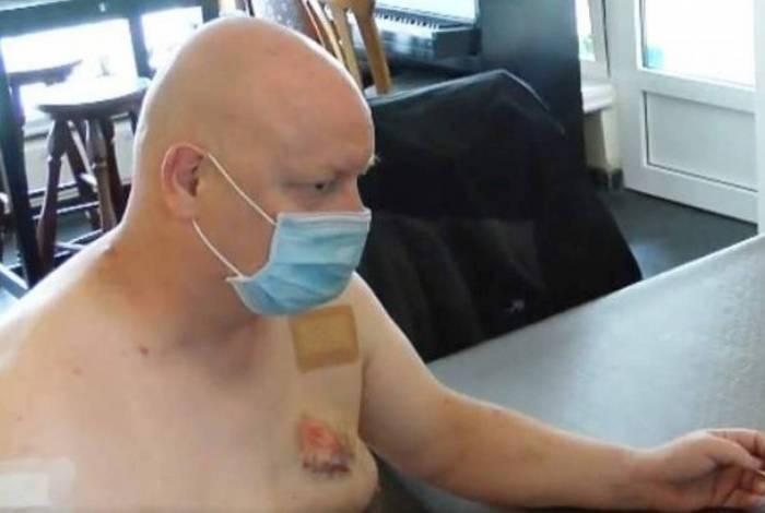 Homem é mordido no peito após demonstrar uso correto de máscara