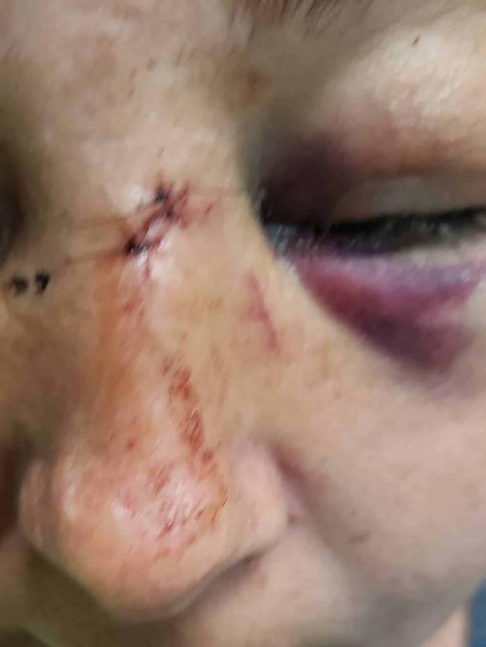 Vítima ficou com várias hematomas no rosto
