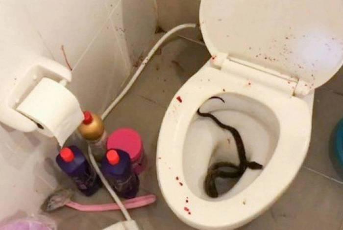 Jovem é picado na parte íntima por cobra enquanto estava no banheiro