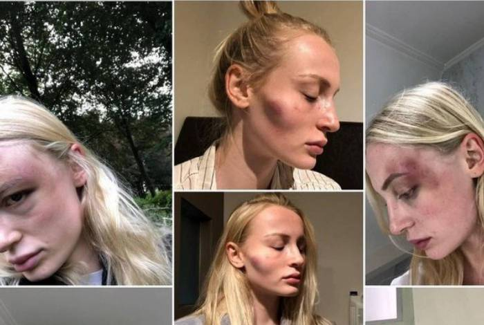 Anthonia Rochus postou fotos de como ficou após ser agredida pelo ex-namorado