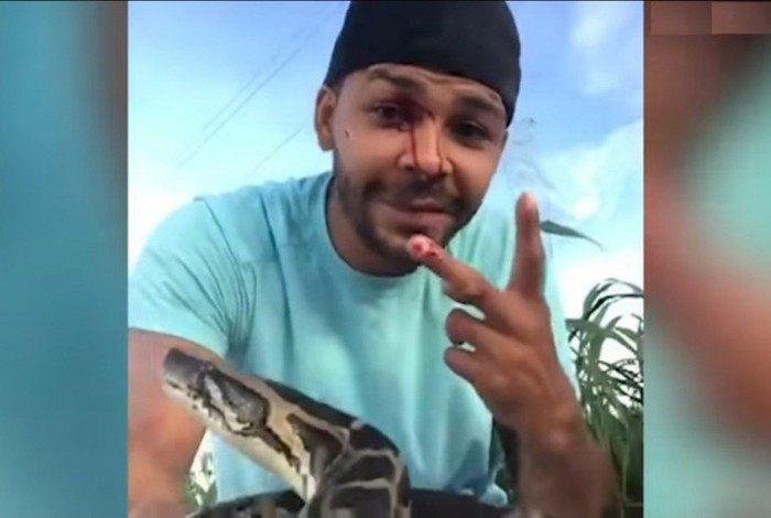 Nick Bishop é um tratador de cobras e quase teve seu olho arrancado após ataque de uma píton