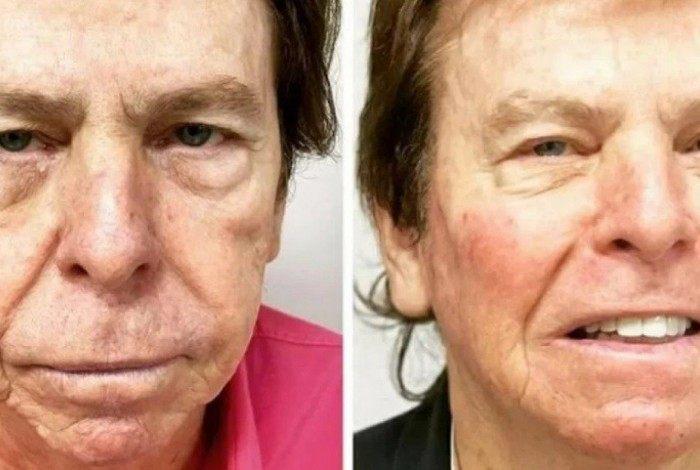 Nelson Rubens passa por harmonização facial