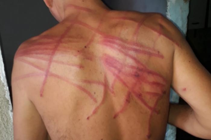 Rapaz foi agredido com tapas e fios